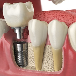 Animation of bone graft and dental implant process
