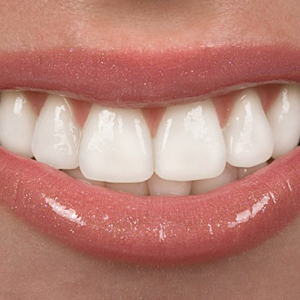 A closeup of a person's smile.
