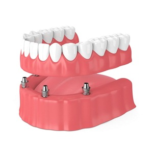 A diagram of a Teeth in a Day implant denture.