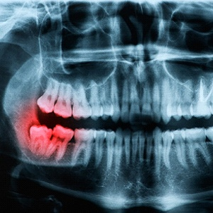 X-ray of a person with an impacted wisdom tooth.